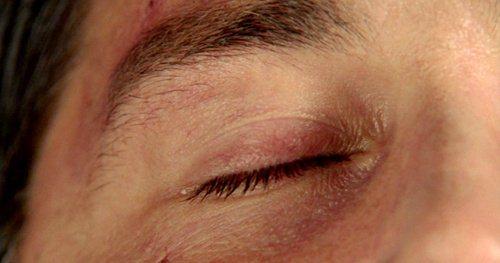 Jack's closed eye